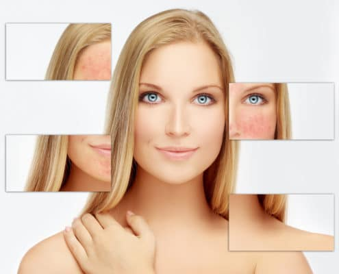 Rosacea Westport CT
